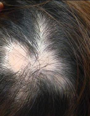 円形脱毛症を治す方法はあるのでしょうか?最新治療情報の紹介