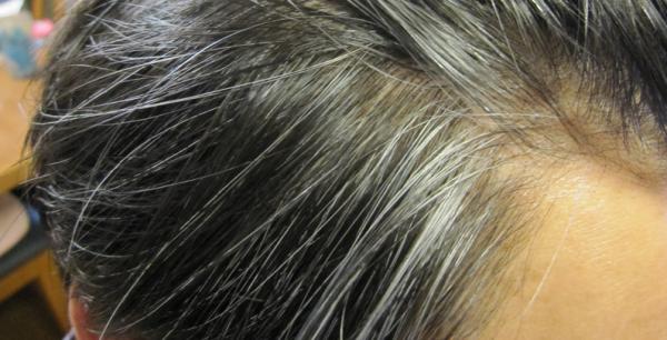頭が痒い時は白髪に注意?白髪が増える原因と対策!全部教えちゃいます。