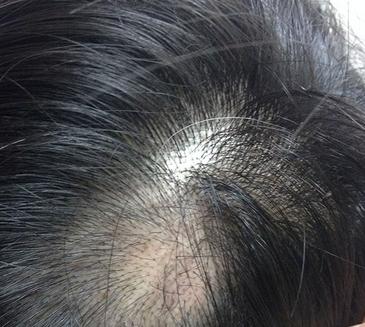 治らないと言われている全身円形脱毛症(汎発性脱毛症)の完治例