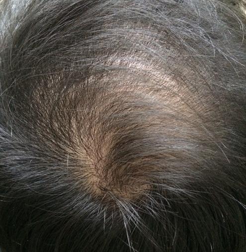 女性の頭頂部の薄毛対策!薄い髪を改善する方法