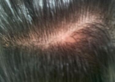 髪の毛の分け目が薄い女性へ!頭皮の保湿と血行不良改善で薄毛を予防