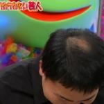 福岡県博多でAGA治療にお勧めの病院!薄毛対策は有名なクリニックで
