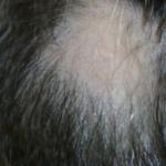 円形脱毛症が改善した後に生える白髪の原因とは?美容師おすすめ対策方法