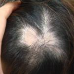 円形脱毛症は自然治癒します!美容師の体験談