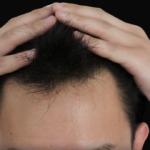 【2018年最新】最強の増毛方法11選!違いを比較