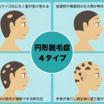 【最新】円形脱毛症の病院での治療法!